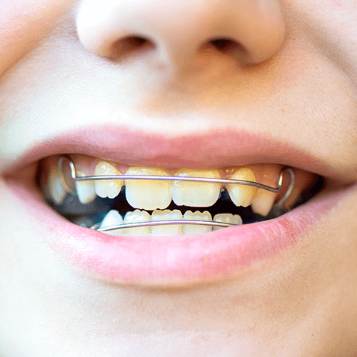 Braces-for-Kids-and-Teenagers